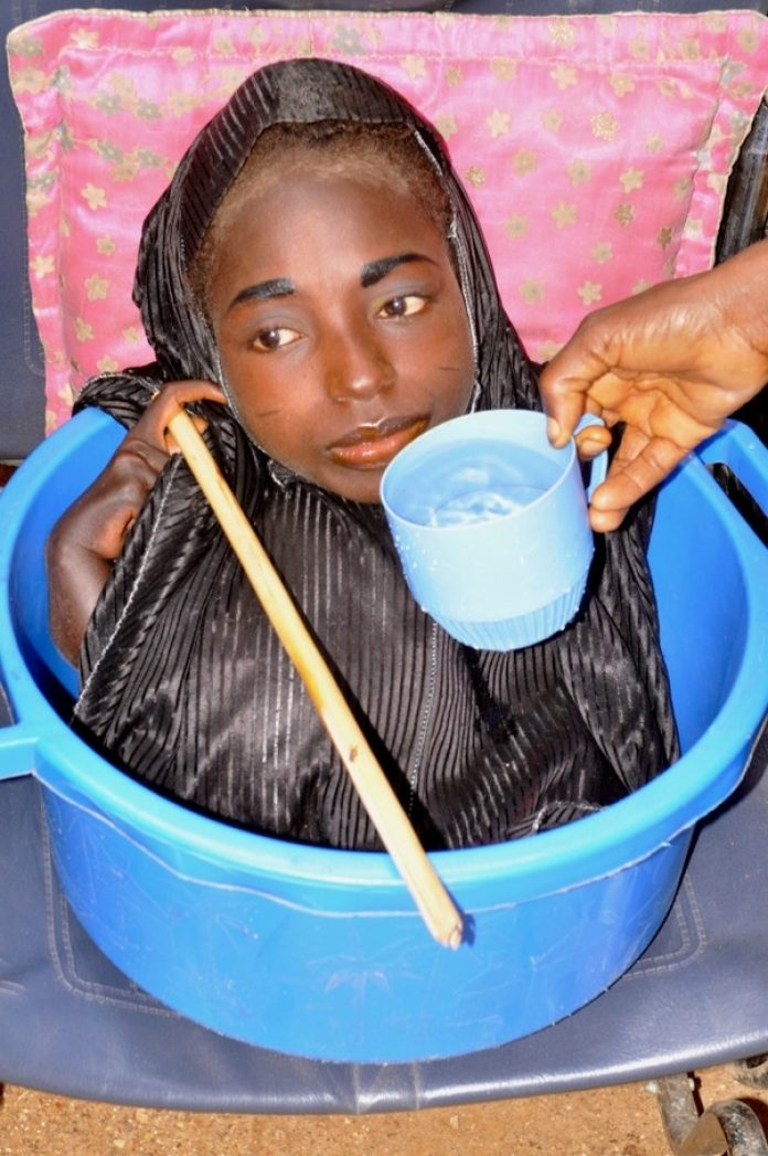 Meet Rahma Haruna, The Girl Who Lived In A Plastic Bowl