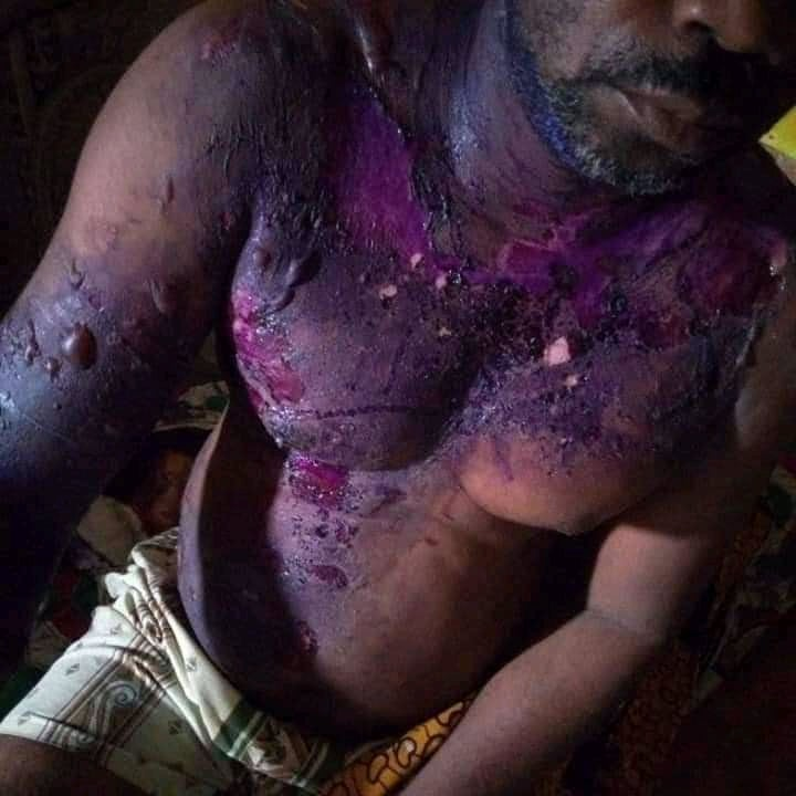 Lady Poured Hot Water On a Man While Sleeping At Bayelsa